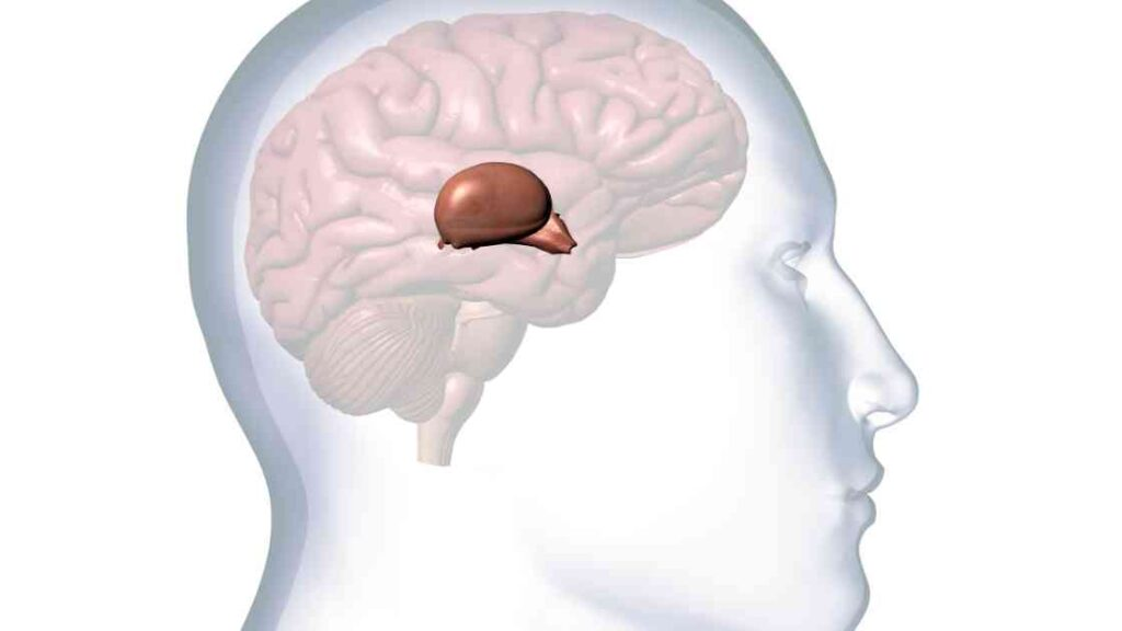 calcification of pineal gland